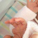 Amniotic band constricting thumb of newborn