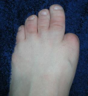 leftfoot - Amniotic Band Syndrome