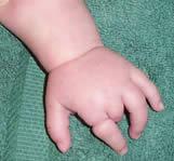 L hand2
