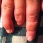 Close up picture of fingers affected by Amniotic Band Syndrome